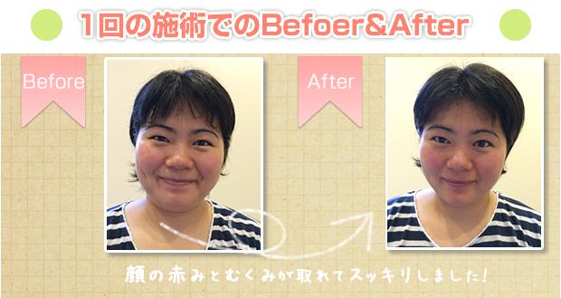 美容鍼1回の施術Before&After